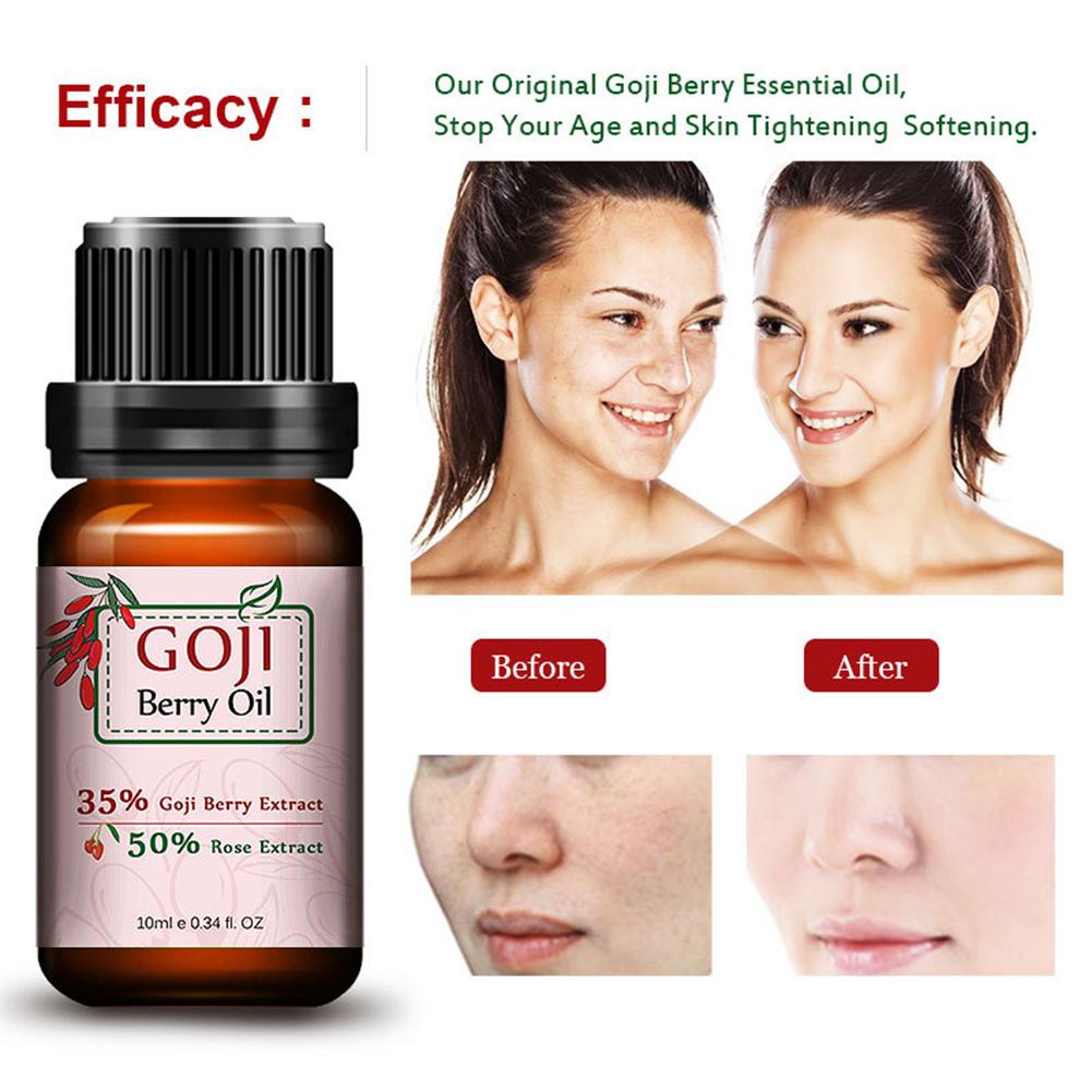 Hyaluronic Acid Goji Berry Essential Oil Rose Flavor Moisturizer Whitening Anti Aging Wrinkle Facial Cream Skin Care