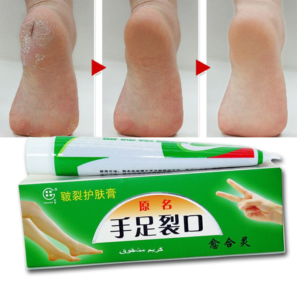 25g Hand Foot Crack Cream Heel Chapped Peeling Repair Anti Dry Crack Skin Chinese Medicinal Ointment Cream Skin Care