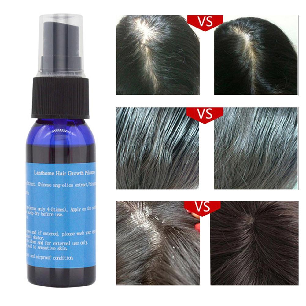 30ml Fast Hair Growth Serum Pilatory Anti Baldness Hair Care Hair Loss Treatment Beard Oil New